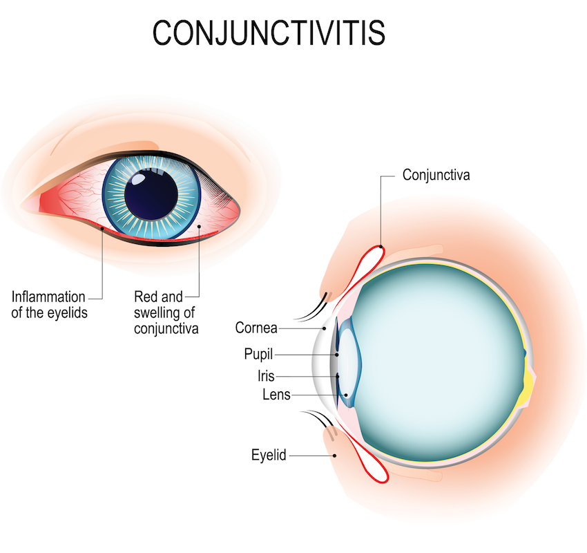 Allergic Conjunctivitis Vs Bacterial Pictures To Pin On: La Pine Eyecare Clinic