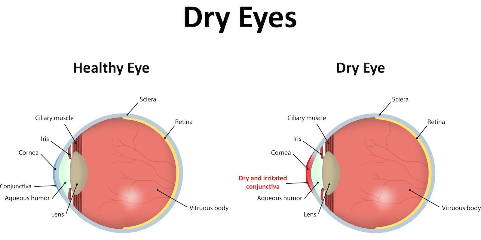 dry-eye-syndrome-copy