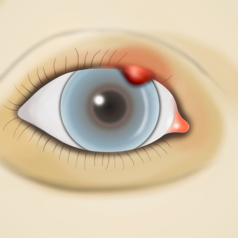 eyelid-margin-disease-hordeolum-copy
