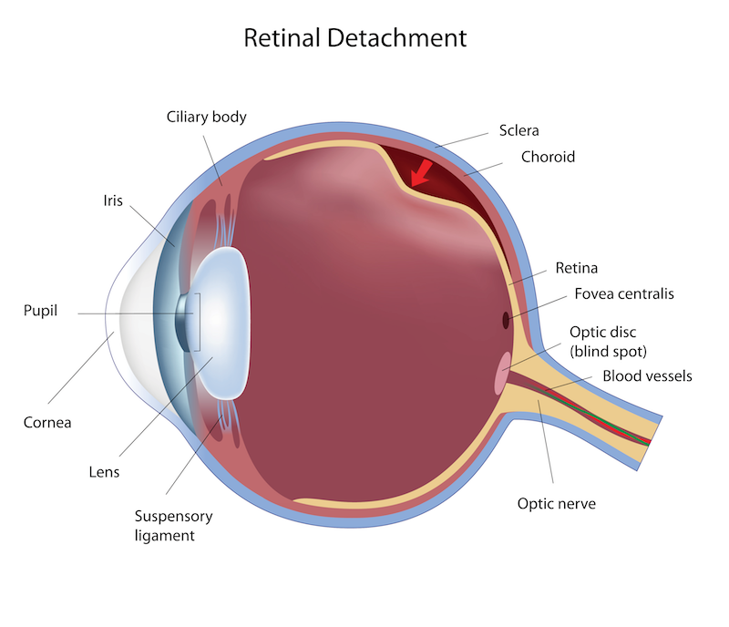 retinal-detachment-copy